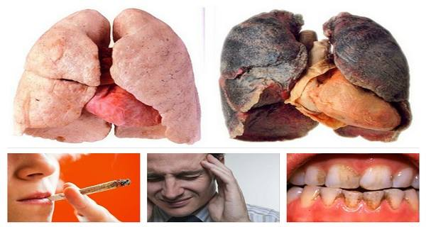 long term effects of steroids for asthma