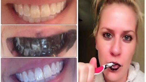 3 astuces naturelles pour avoir des dents plus blanches. Black Bedroom Furniture Sets. Home Design Ideas