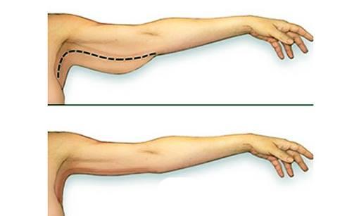 Comment perdre la graisse sous les bras: 12 tapes - wikiHow