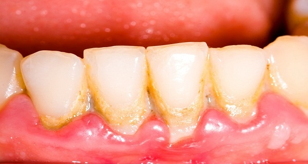 take-one-tablespoon-every-day-and-save-your-teeth-remove-plaque-in-a-very-simple-and-natural-way
