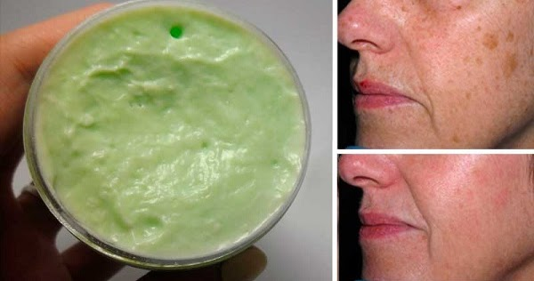 this-amazing-homemade-cream-will-make-your-stretch-marks-wrinkles-and-blemishes-disappear-in-just-48-hours