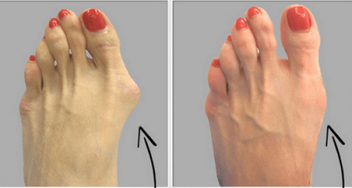 why-do-doctors-keep-this-simple-recipe-away-from-the-public-heres-how-to-get-rid-of-bunions-completely-natural