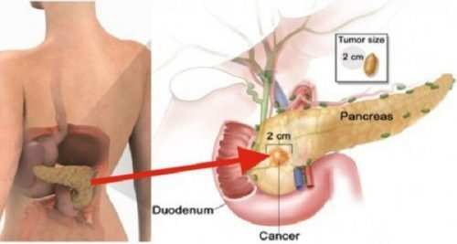 eating-only-2-pieces-of-this-increases-your-risk-of-pancreatic-cancer-compressor